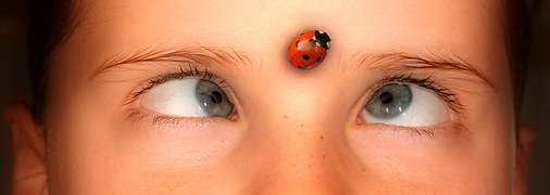 ladybird forehead cross-eyed girl